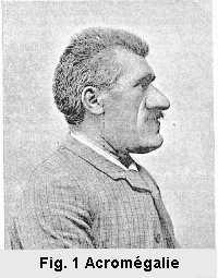 Figure 1: Profil d'un individu atteint d'acromégalie.Acromégalie