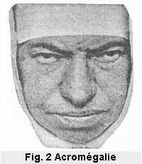 Figure 2: Profil d'une religieuse atteinte d'acromégalie.