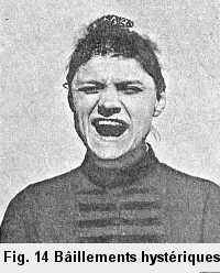Figure 14: Personne prise de bâillements hystériques.