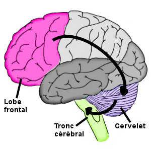 L'affect pseudobulbaire résule d'une lésion au niveau du circuit cérébral de l'expression des émotions, impliquant notamment le lobe frontal, le cervelet et le tronc cérébral.
