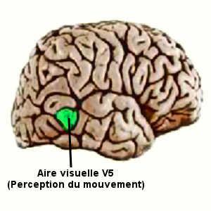 L'akinétopsie correspond à une agnosie visuelle du mouvement. Elle se caractérise par la sensation d'un monde figé.