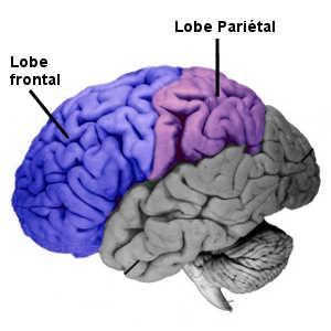 L'anosognosie est souvent causée par une lésion cérébrale au niveau des aires pariétales ou fronto-pariétales.