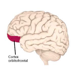 Un tempérament colérique se caractérise généralement par une faible activité du cortex orbitofrontal.