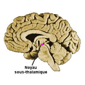 Le syndrome de Capgras est certainment dû à une lésion cérébrale, au niveau du noyau sous-thalamique.