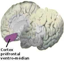 La région ventro-médiane du cortex préfrontal est la zone cérébrale lésée dans le cas d'Elliot.