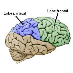 Une héminégligence est généralement causée par des lésions au niveau du lobe pariétal, du lobe frontal ou des voies de communication entre ces deux régions du cerveau
