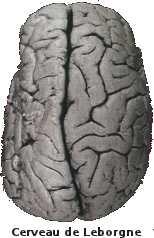 Le cerveau de Leborgne présente une lésion dans l'hémisphère gauche, au niveau du lobe frontal. Il est à l'origine de la localisation d l'aire du langage: l'aire de Broca.
