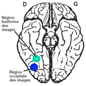 La prosopagnosie serait causée par un dysfonctionnement cérébral du lobe temporal de l'hémisphère droit, au niveau de la région fusiforme des visages et de la région occipitale des visages.