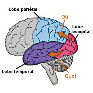 La simultanagnosie est généralement déclenchée par une lésion située à cheval sur les cortex pariétal et occipital.