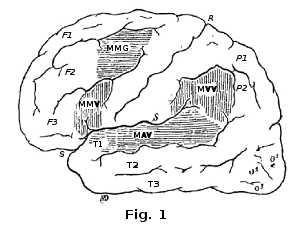Lésions du cerveau provoquant une surdité verbale.