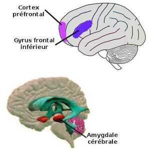 L'amygdale cérébrale, le cortex préfrontal ainsi que le gyrus frontal inférieur sont hyperactives chez les personnes souffrant de timidité.