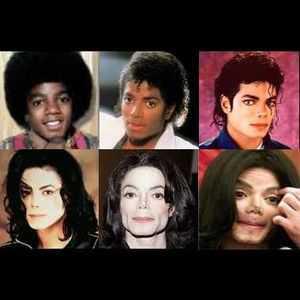 Les opérations de chirurgie plastiques successives de Michael Jackson ont complètement déformé son visage, le rendant presque inhumain.