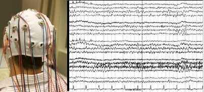 L'electro-encépahlogramme est la première méthode d'exploration du cerveau.