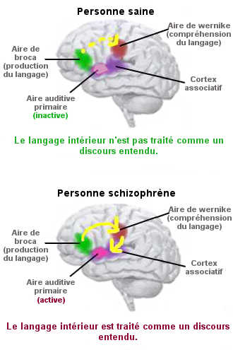 L'interaction entre les aires activée dans la production et la compréhension du langage subit un dysfonctionnement chez les schizophrène. Il en résulte une hallucination verbale.