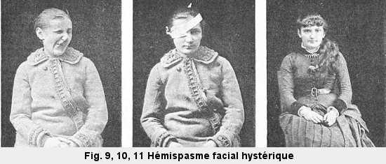 Figure 9, 10, 11: Jeune femme ayant souffert d'un hémispasme facial hystérique.