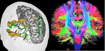 L'imagerie par tenseur de diffusion est la méthode la plus récente et la plus précise pour cartographier en temps réel, les zones cérébrales actives.