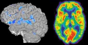 L'IRM fonctionnelle et la tomographie par émission de positons fournissent des images plus précises du cerveau en activité.