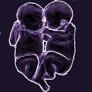 Les jumeaux présentent un développement psychologique particulier, comprenant des étapes supplémentaires.