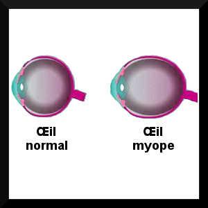 La myopie se caractérise par une croissance anormale du globe occulaire, ce qui provoque un trouble de la vison.