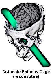 La reconstitution du crâne de Phineas Gage montre comment la barre à mine a traversée sa tête et lésé son cerveau.