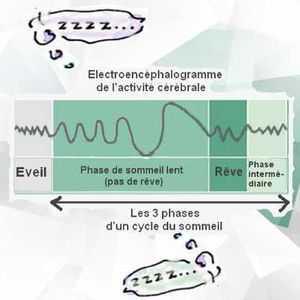 L'activité cérébrale enregistrée au cours d'un cycle du sommeil peut se diviser en 3 phases.