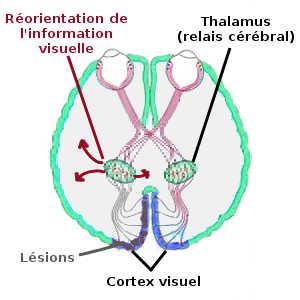 Le cerveau des patients ayant une vision aveugle traite les signaux visuels envoyé par la rétine de façon différente, sans impliquer les centres de la mémoire et de la conscience.