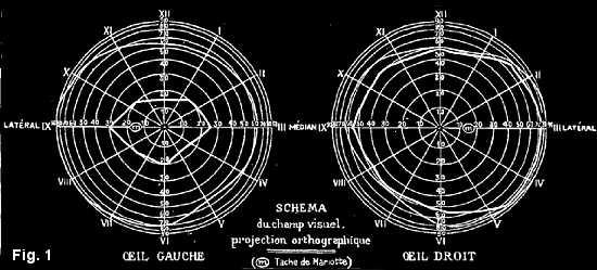 Examen du champs visuel de l'hystérique Blanche Witt. (image 1).